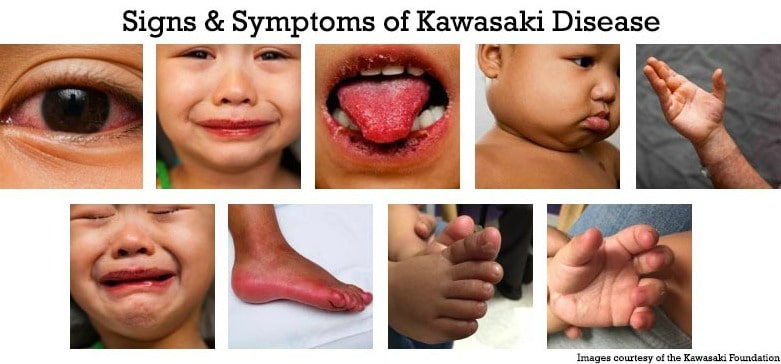 Kawasaki Disease Symptoms